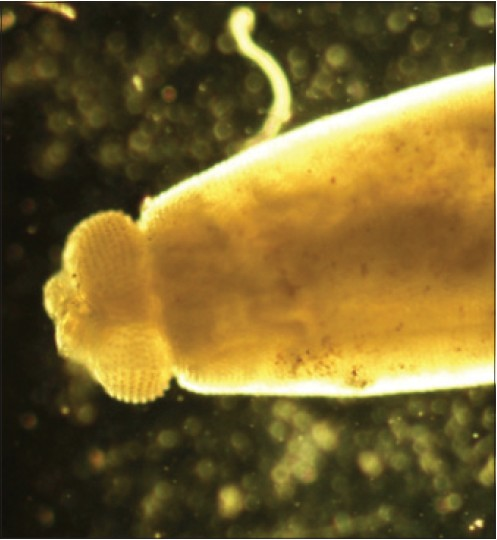Figure 3: Photograph showing head bulb of <i>Gnathostoma</i> spp. adult male worm using light microscope (×10)