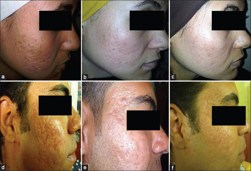Figure 2: Atrophic acne scars of representative patients showed notable improvement in all types. (a and d) before treatment (baseline), (b and e) after 18 weeks of PCI treatment, (c and f) after 26 weeks (at the end of study)
