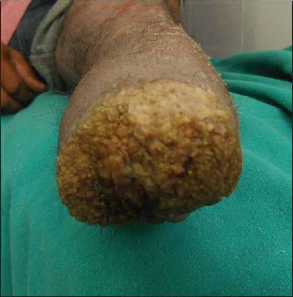 Figure 1: Clinical photograph showing multiple verrucous papules coalescing to form a plaque over amputation stump