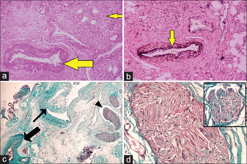 Figure 2: Capillary hemangioma reclassified as arteriovenous malformation based on special stains (a) artery (thick arrow) adjacent to small capillary-like proliferations (thin arrow)(H and E, ×100),(b) Verhoeff–van Gieson stain highlighting internal elastic lamina of artery (arrow) (Verhoeff–van Gieson, ×100), (c) increased nerve bundles (arrowhead) and tortuous artery (thick arrow), dysplastic vein (thin arrow)(Masson's trichrome, ×100), (d) nerve bundle containing multiple myelinated axons (red) separated by endoneurial sheath (green)(Masson's trichrome, ×400)