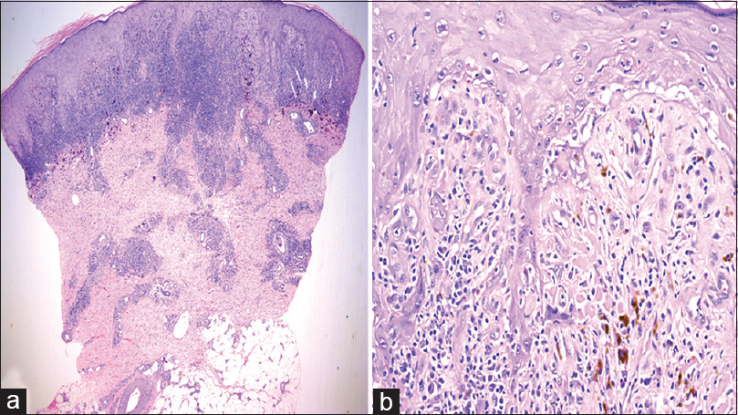 Figure 3: Case 1:(a) Pseudoepitheliomatous hyperplasia, lichenoid infiltrate, superficial and deep dermal perivascular and periadnexal infiltrate, H and E, ×25; (b) interface pathology with basal layer vacuolization and apoptotic keratinocytes, H and E, ×200