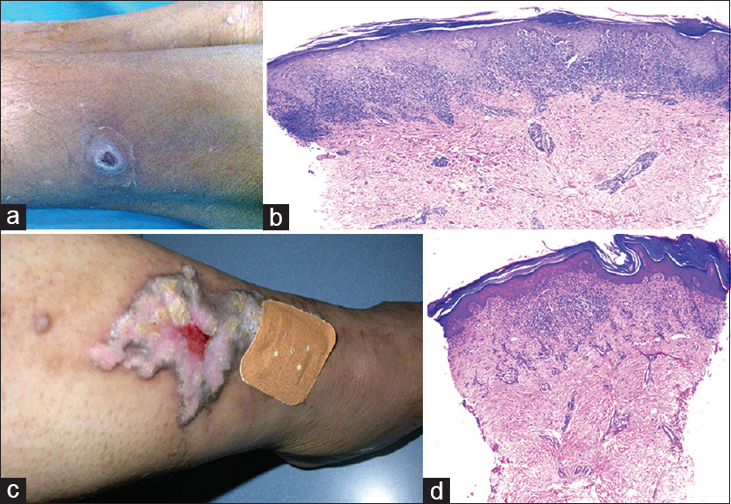 Figure 5: Case 5(a and b):(a) Papule with central erosion on the leg; (b) orthokeratotic hyperkeratosis, epidermal acanthosis with wedge-shaped hypergranulosis and lichenoid interface pathology, H and E, ×40. Case 6 (c and d):(c) Ulcerated plaque on leg and adjacent papular lesion; (d) hyperkeratosis and lichenoid interface pathology, H and E, ×4