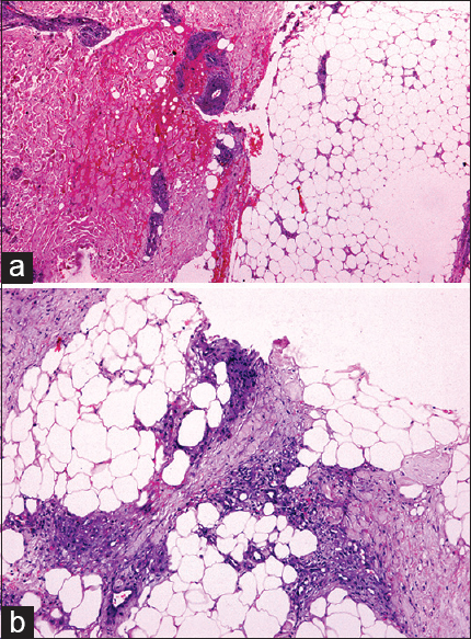 Panniculitis: A dermatopathologist's perspective and ...