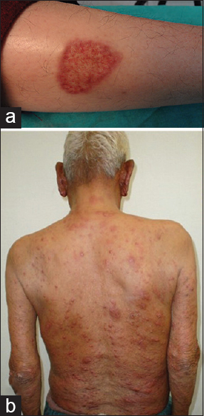 Panniculitis: A dermatopathologist's perspective and