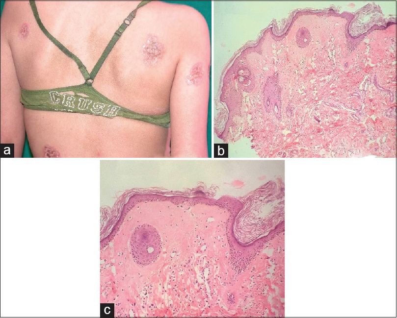 Figure 1: (a) Clinical picture of extragenital lichen sclerosus, (b) microphotograph showing epidermal atrophy and dermis hyalinosis (H and E, ×40), (c) microphotograph showing follicular plug in epidermis and vascular ectasia in dermis (H and E, ×100)