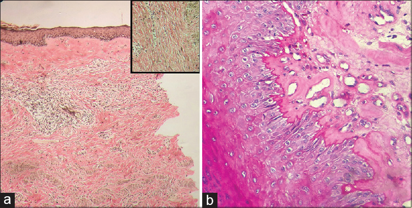 Figure 3: (a) Verhoeff-Van Gieson stain showing loss of elastic fibers in papillary dermis (H and E, ×100); inset shows preserved elastic fibers in lower dermis, (b) periodic acid-Schiff stain showing normal basement membrane (H and E, ×200)