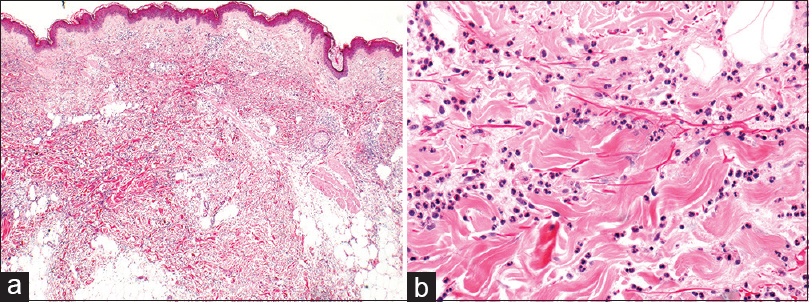 Figure 4: Monogenic autoinflammatory disease: (a) Neutrophilic urticarial pattern in a patient with Muckle–Wells syndrome. (b) Note the dense interstitial infiltrate composed almost exclusively of mature neutrophils with minimal dermal edema (×2 [a] and × 20 [b])