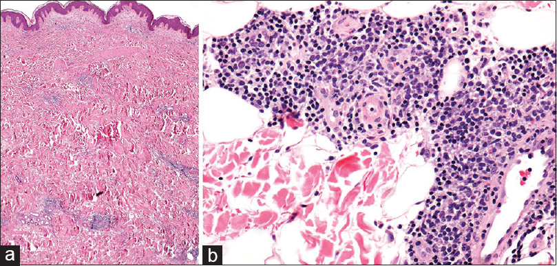 Figure 5: Nondescript superficial and deep perivascular lymphocytic infiltrate with scattered plasma cells in tumor necrosis factor-receptor-associated periodic syndrome (×2 [a] and × 20 [b])