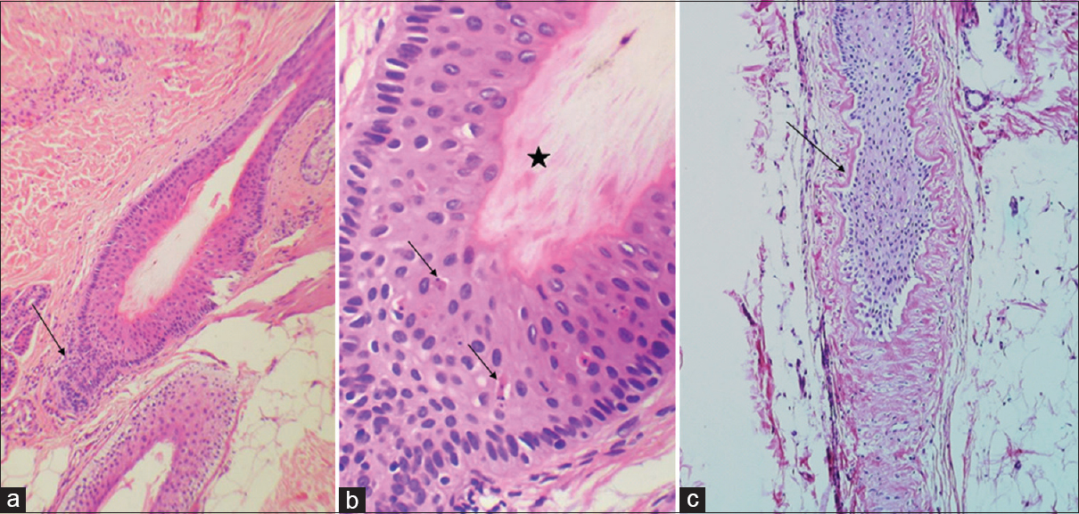 Figure 3: Catagen hair follicle: (a) Involuting lower segment (arrow) (H and E, ×200), (b) Apoptotic cells (arrows) and cornification of outer root sheath (star) (H and E, ×200), (c) Thick corrugated basement membrane (arrow) (H and E, ×200)