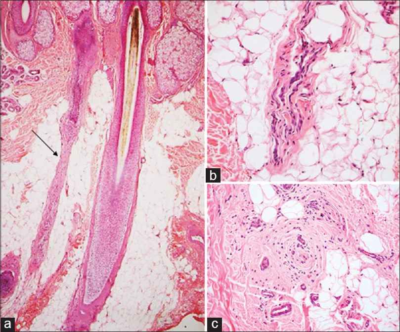 Figure 4: Fibrous tract/streamer/stela: (a) A stela (arrow) in the wake of an involuting catagen terminal follicle (H and E, ×40), (b) Longitudinal view of an empty stela composed of connective tissue and blood vessels (H and E, ×200), (c) End on view of stela (H and E, ×200)