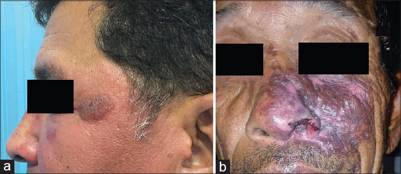 Figure 2: (a) Erythematous infiltrated plaques involving the left side of the face in a case of borderline tuberculoid leprosy. (b) Erythematous plaque involving the left cheek and nose with patchy areas of erosion and crusting in a case of lupus vulgaris