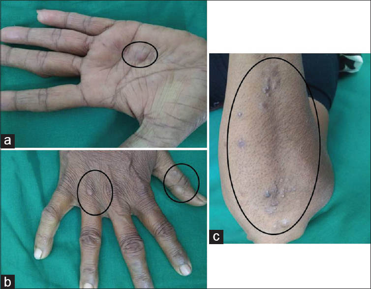 Figure 1: (a-c) Skin colored to slightly violaceous to yellow colored elevated skin lesions over the inter phalangeal joints, palm, and extensor aspect of forearm