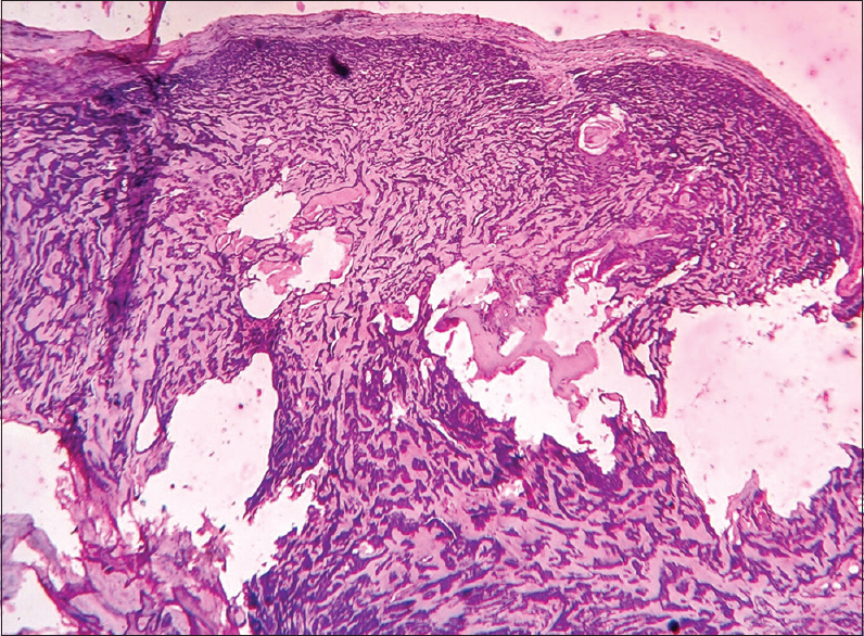 Indian Journal of Dermatopathology and Diagnostic