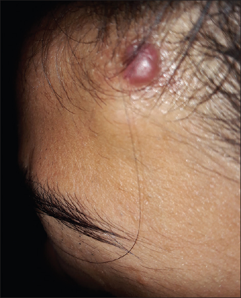 Figure 1: Simultaneous presence of an erythematous to violaceous papule and a subcutaneous nodule on the left side of the forehead